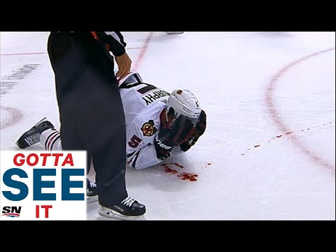 GOTTA SEE IT: Blackhawks' Murphy Bloodied By Pitlick Elbow To Face