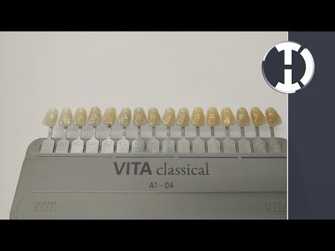 DentalQuickTip:  How to Arrange Your Vita Shade Guide in Value Order