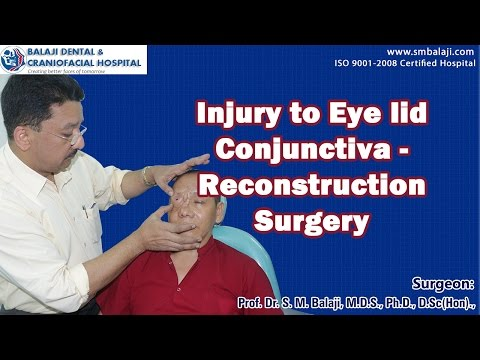 Injury to eye lid conjunctiva - Reconstruction Surgery