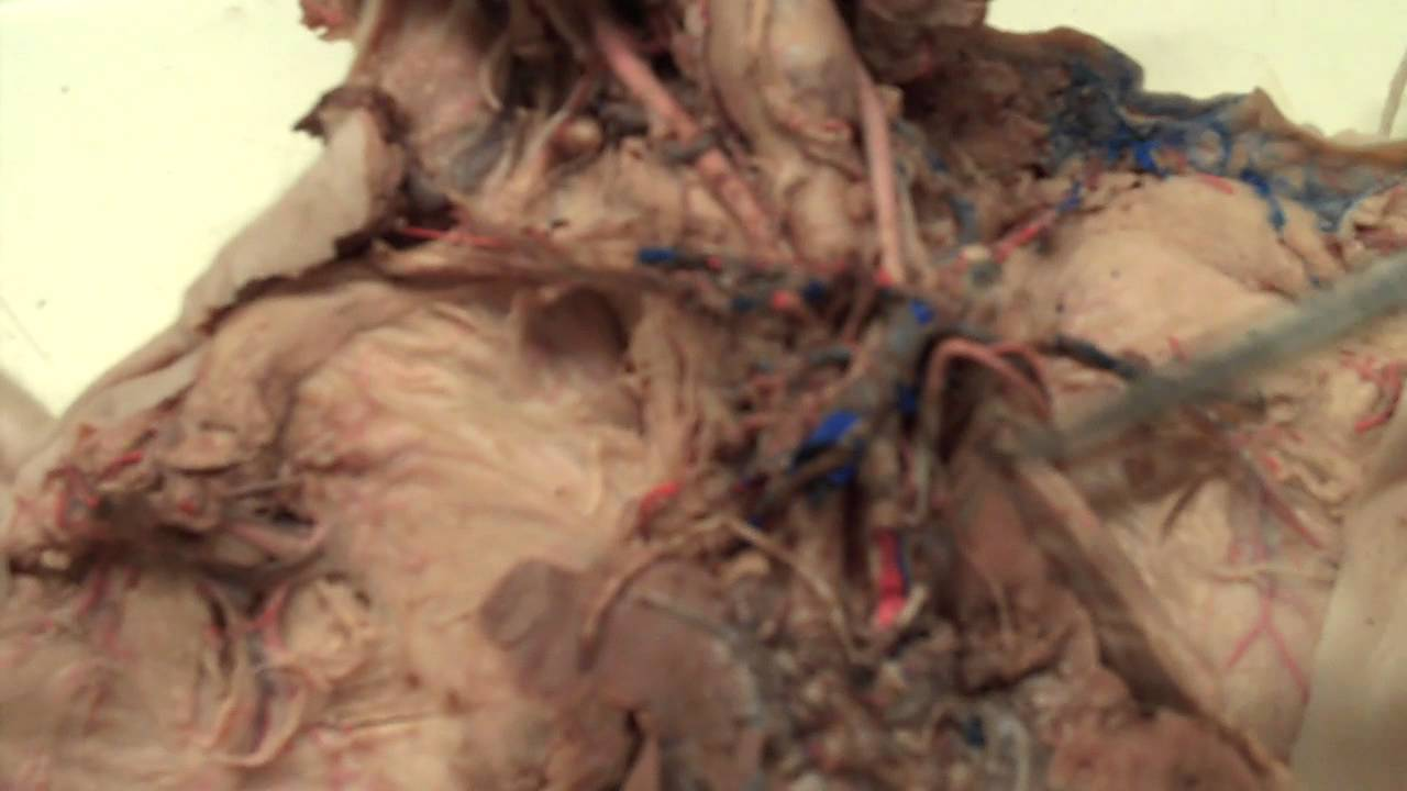 Fetal Pig Dissection: 4.4 Arteries Cranial to the Heart - YouTube