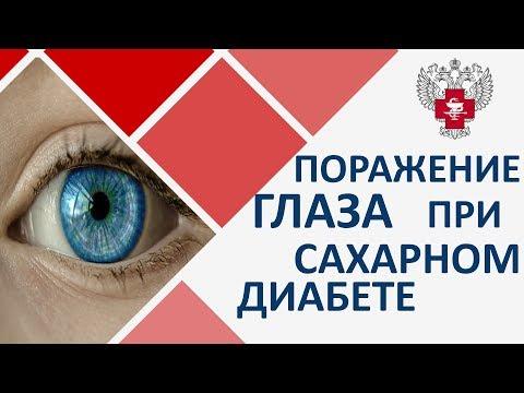 Сахарный диабет и зрение. 👁 Диагностика и лечение зрения при сахарном диабете. Пироговский центр.