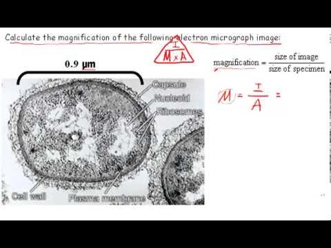 Calculating Magnification (IB Biology)