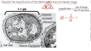 Calculating Magnification (IB Biology)