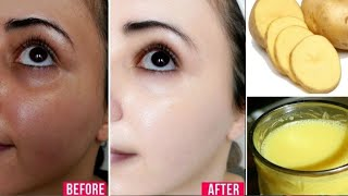 SKIN WHITENING Overnight / Apply it in 5 Minutes before Sleep/ FAIR SPOTLESS GLOWING SKIN II NGWorld