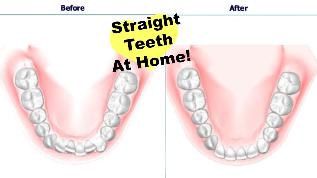 Get straight teeth at home - How To Get Straight Teeth At Home Invisible Aligners Update Youtube