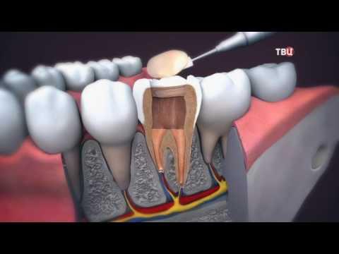Зубы болят без нервов