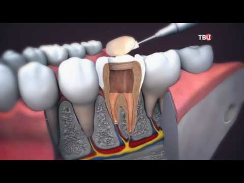 Болит внутри зуба после надавливания