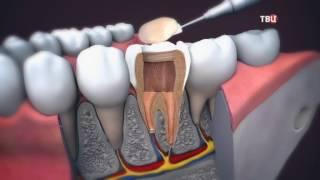Если болит зуб. Доктор И...(, 2016-10-13T06:00:00.000Z)