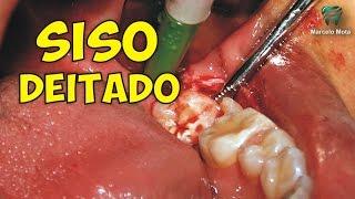 Dentes siso medicação anti-inchaço do