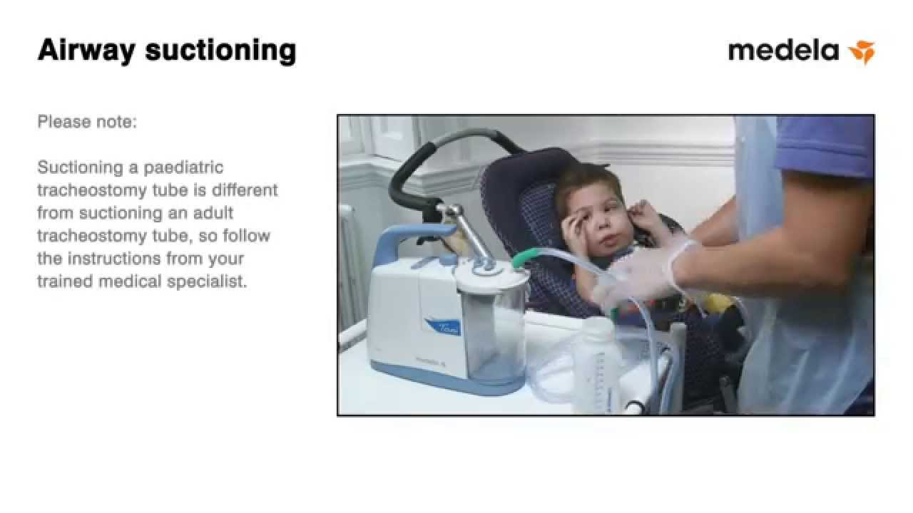 Managing the Tracheostomy Patient