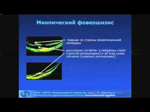 Дулидова В.В. Миопическая макула. ОКТ-диагностика.