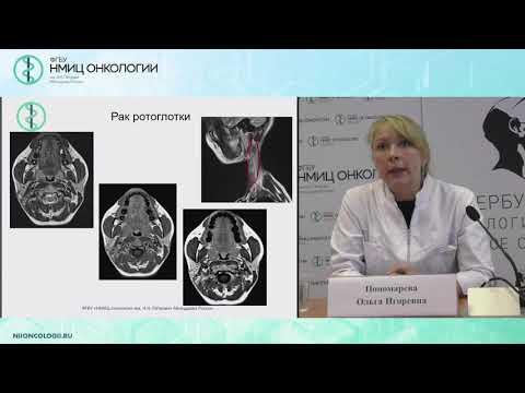Диагностическая ценности МРТ исследования при метастатическом поражении лимфатических узлов