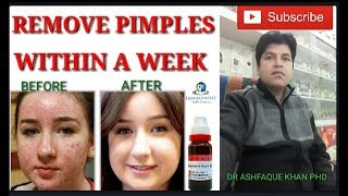 Pimples and its homeopathic treatment.