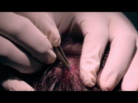 Massive Head Splinter - Bizarre ER from YouTube · Duration:  4 minutes 6 seconds