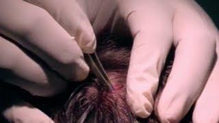 Repeat youtube video Massive Head Splinter - Bizarre ER