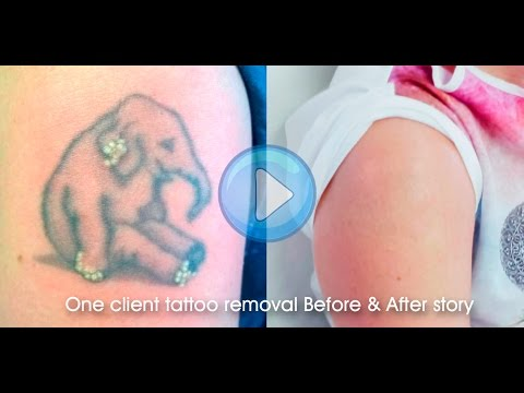 Laser tattoo removal Before & After final results 8 stage treatment tutorial