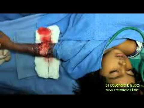 Pediatric Post-burn Contracture Elbow under Regional anaesthesia