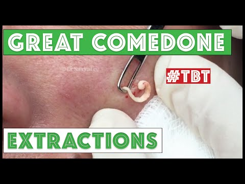 Greatest Blackheads And Whiteheads TBT