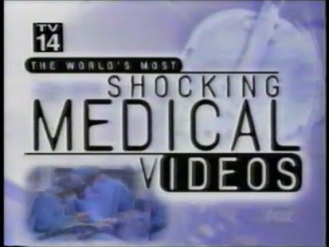 Download The World's Most Shocking Medical Videos - 2/18/99 - Original Fox Broadcast