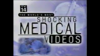 The World's Most Shocking Medical Videos - 2/18/99 - Original Fox Broadcast