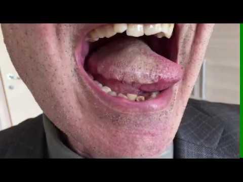 Рак языка. Операция