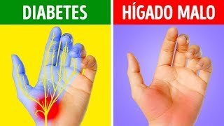 De manos en problemas diabetes las