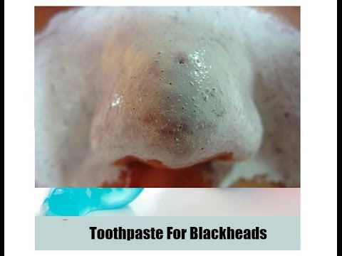 How To Remove Blackheads Whiteheads With Toothpaste And Salt