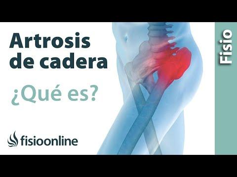 artritis de cadera dolor en la ingle