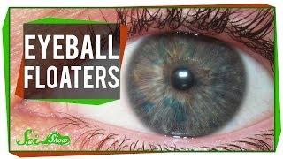 Those Maddening Eyeball Floaters!