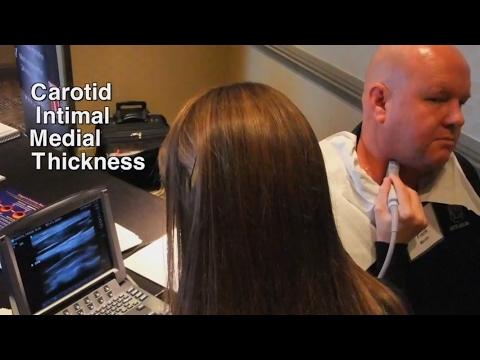 Carotid Intima-Media Thickness (CIMT) Test