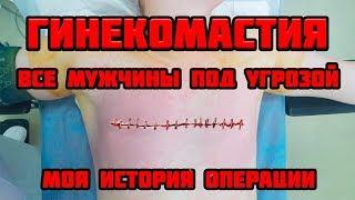гинекомастия / Как удалить гинекомастию / моя первая операция