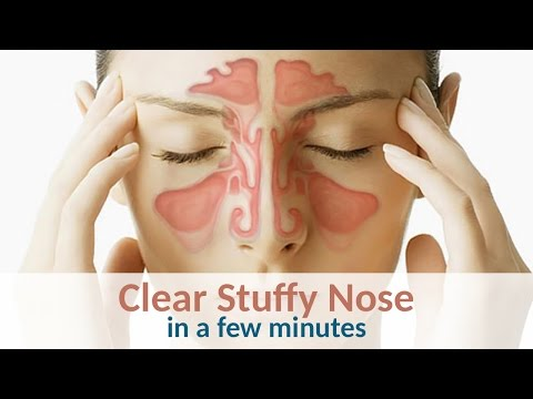 6 Tips to Clear a Stuffy Nose in Minutes