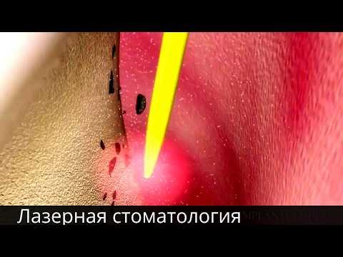 Стоматологическая клиника в Калининском районе СПб