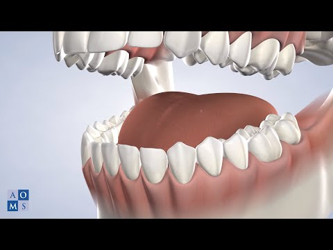 Instrucciones Post-Operatorias: Biopsia | Amarillo Oral & Maxillofacial Surgery