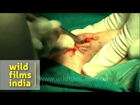 Cutting breast skin for removing cysts