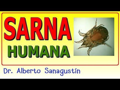 SARNA humana #dermatología 🐞