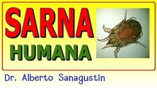 SARNA humana SARNA humana #dermatología ????
