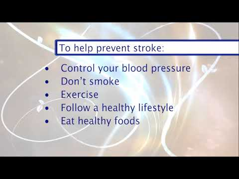 Providence Wellness Watch KGW May 2019 30 Stroke Prevention Dr. Lowenkopf