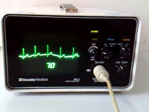 Cardiac monitor EKG