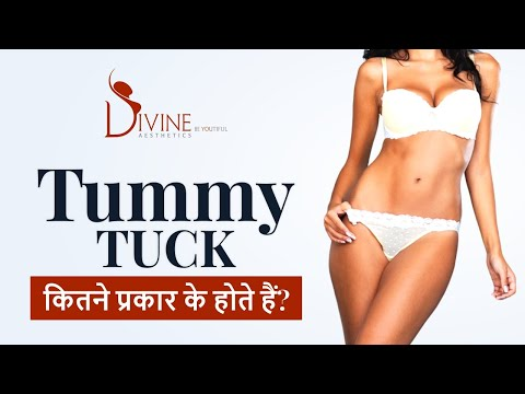 various-types-of-tummy-tuck