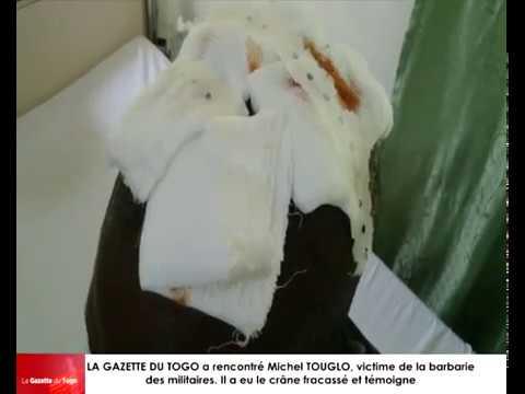 Michel TOUGLO dont le crâne a été fracassé par les militaires raconte ses mésaventures