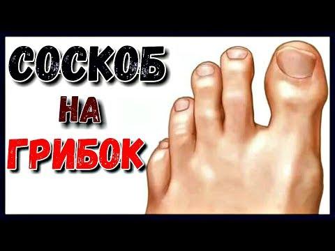 ГРИБОК ногтей. СОСКОБ и назначенное лечение. Грибок ногтей НА НОГАХ.