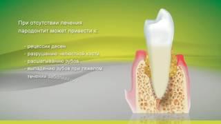видео Атрофия костной ткани челюсти: причины, лечение и восстановление