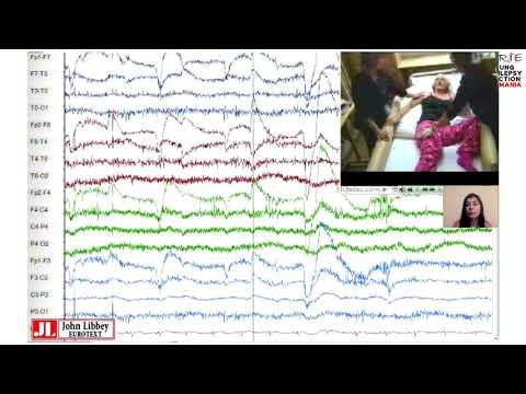 JOURNAL CLUB -Diagnostic diferențial al fenomenelor paroxistice  epileptice si neepileptice.