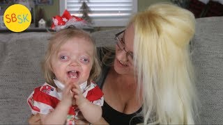Growing Up With Pfeiffer Syndrome (a Normal Kid Who Looks A Bit Different)