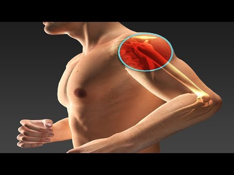 What Are Shoulder Labrum Tears And How Are They Treated? | Dr. Walter Stanwood