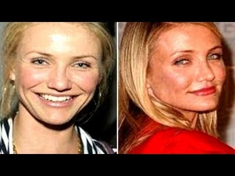 Nose Job Before and After - Celebrity Nose Jobs Photos