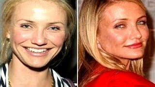 10 Celebrity Nose Jobs Before & After