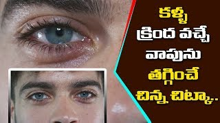 Simply & Natural Way To Remove The Eye Bags | Health News | Health Tips & Tricks | YOYO TV Health