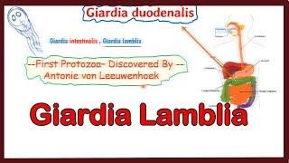 felnőttkori giardiasis kezelés áttekintése